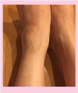 足の美白1